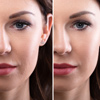 Spots and Wrinkle Correction
