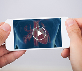 3D Animation for Medical Research Videos