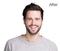 Background Removal with Photoshop After