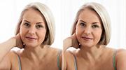 Facial Retouch
