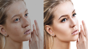 Skin Softening Services