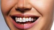 Teeth and Eye Whitening Services