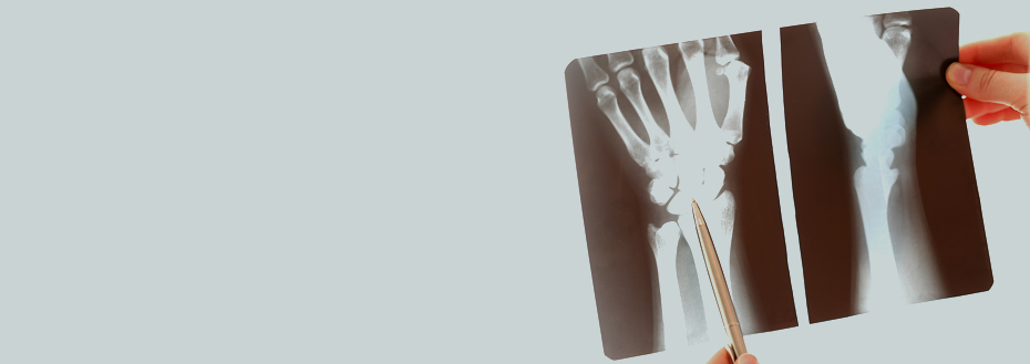 Outsource Bone Density Scan Services