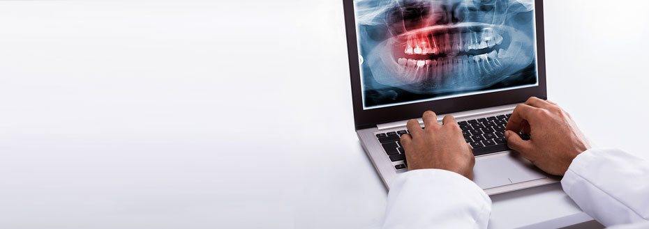 Outsource Dental X-ray Imaging Services