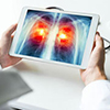 3D Medical Animation
